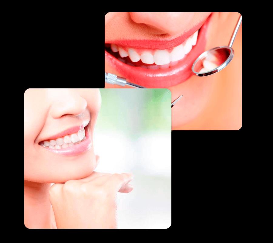 Odontologia Estética em Curitiba